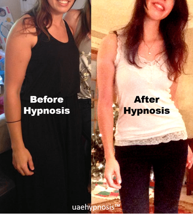 Hypnosis for Weight Loss - A Nurse's Journey with Hypnosis